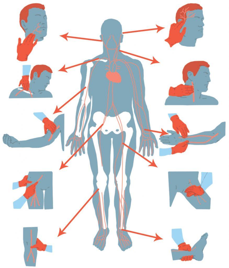 Punts de pressió indirecta en hemorràgies
