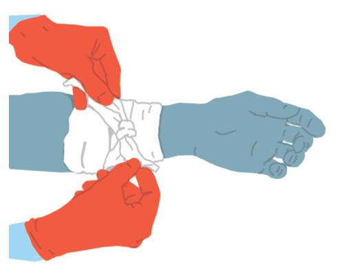 Hemorragies: venar amb força