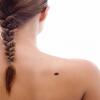 Noia amb melanoma