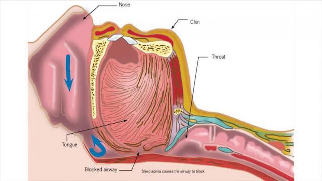 Las apneas del sueño y su relación con el cáncer