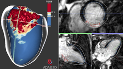 ADAS 3D is an imaging software that helps cardiologists treat two of the most prevalent types of arrhythmia.