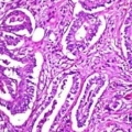 Microscopic image of colon cancer.- New regions of genetic material are involved in the development of colon cancer